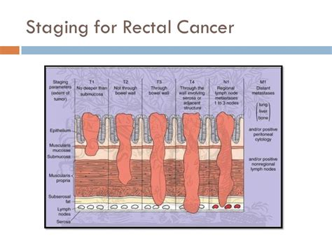 Staging of colon cancer by size of 15 picture 5