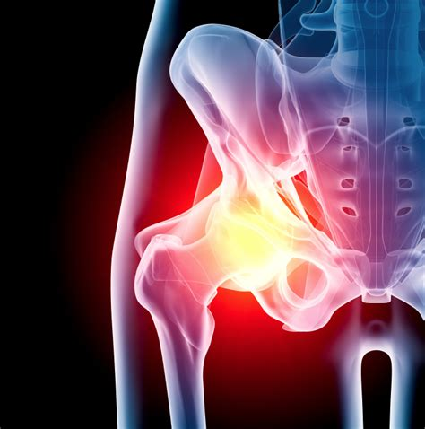 hip pain relief picture 13