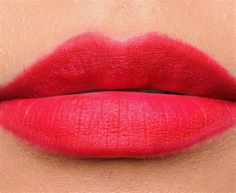 abnormal lips picture 6
