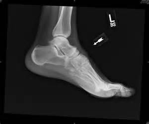 ankle joint recurrent subluxation dislocation picture 11