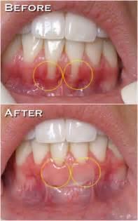 gum grafting picture 2