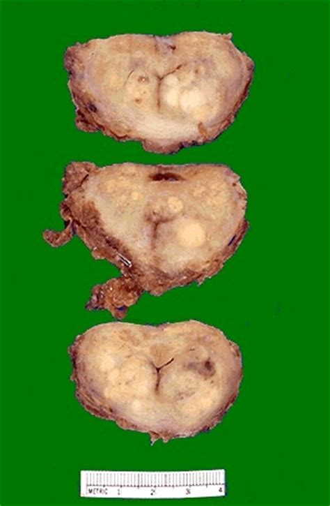 Nodules on the prostate picture 6