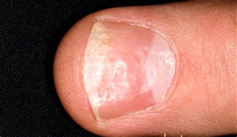fatigue,dented fingernails,loss of body hair picture 3