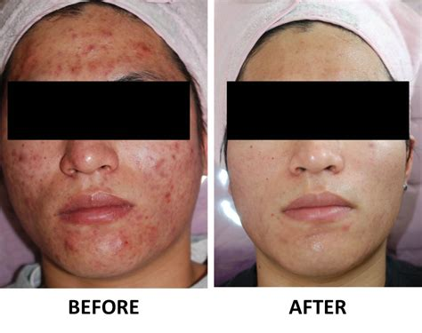 acupuncture better than drugs for acne picture 2