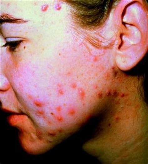 does garcinia cambogia causes acne picture 2
