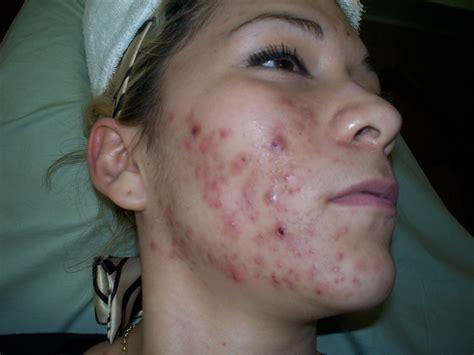 acne female picture 6