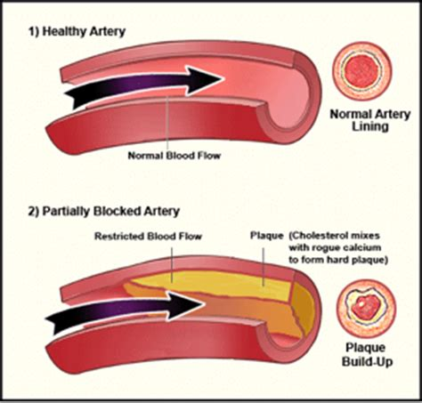 fatty deposits in penis blood flow picture 9