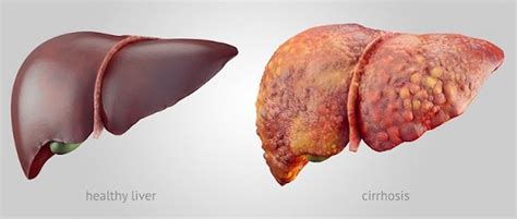 chronic liver disease skin name picture 1