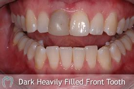 decayed and sensitive teeth picture 10