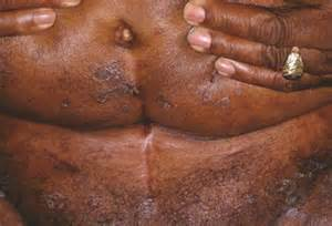 yeast infections in men picture 2