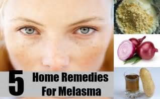herbal remedies melasma picture 3