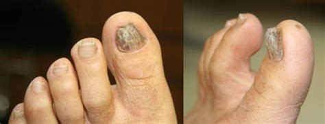 circulation and toenail fungus picture 17