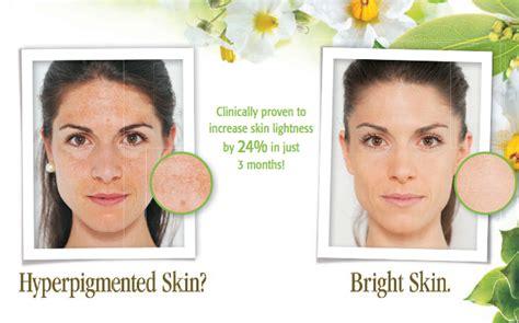 acne treatment in miami fl picture 13