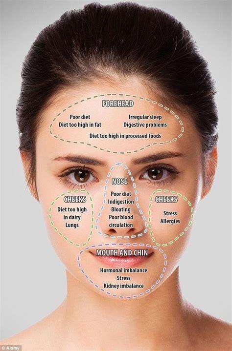 internal treatment for acne dr bilques picture 3