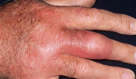 skin infection on knuckle picture 5