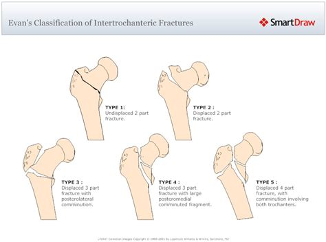 joint injuries due to car accidents picture 7