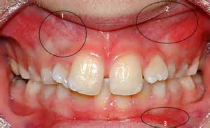dog teeth growing in with another tooth picture 9