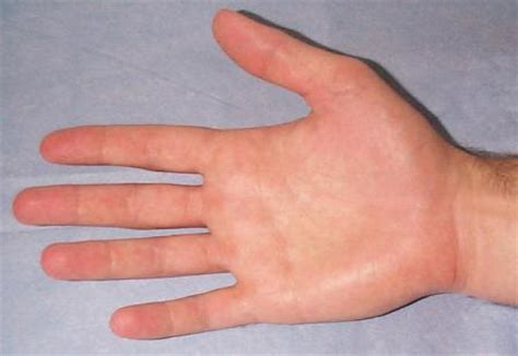 white or red thyme for ganglion cyst picture 11