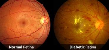 norman diabetic retinopathy picture 9