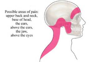 headaches and neck pain and grinding h picture 1