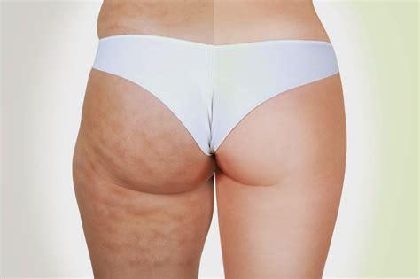 clarins cellulite cream picture 13