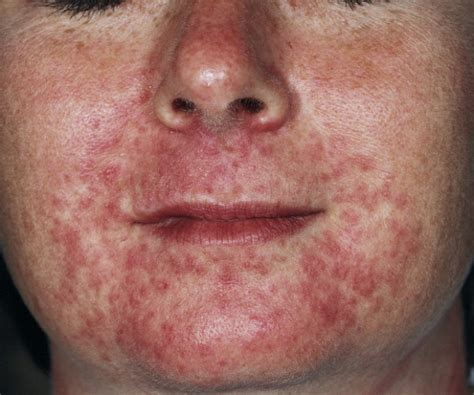 rash that looks like acne picture 9