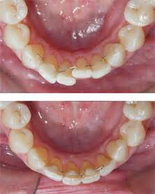 clear bonding for teeth picture 5
