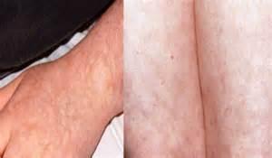skin rash livedo picture 13