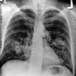 smoke damaged lungs picture 6