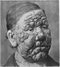 guba skin age picture 1
