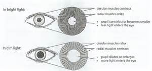 iflamation of the iris muscle picture 18