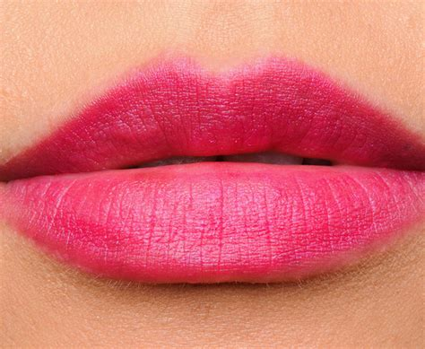 abnormal lips picture 3