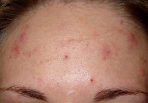 for dangrous acne any solution or tip in picture 11