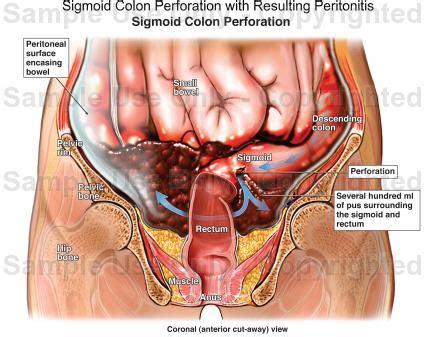 colon perforation picture 10
