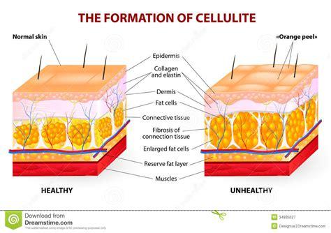free cellulite pics picture 9