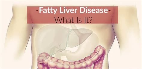 fatty liver disease picture 10