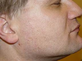 mayo clinic diet and acne picture 2