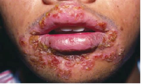 a pic what herpes look like on your picture 9
