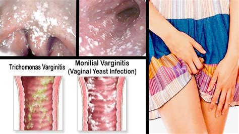 information on yeast infections of the vulva picture 8