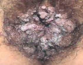 gential warts females pictures picture 7