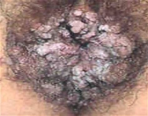 genital warts picture and their related homeopathy picture 5