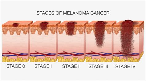 stages of skin cancer picture 2