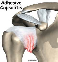 capsulitis fifth toe joint symptoms picture 3