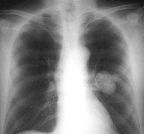 chinese medicine lung nodule picture 6