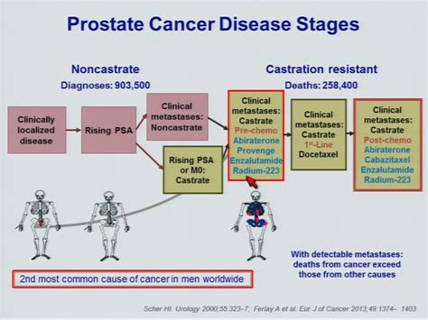 Advanced treatment for prostate cancer picture 17