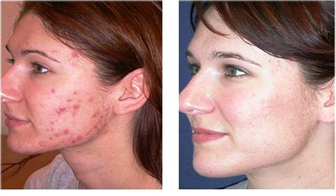aldactone helping acne picture 2