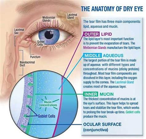 dry, red eyes, liver disease picture 10