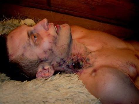 china cure herpes picture 9