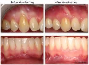gum grafting picture 1