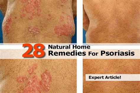herbal psoriasis remedies picture 6